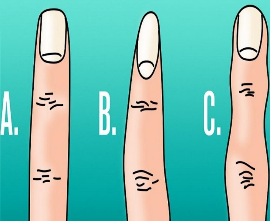 რაზე მეტყველებენ თქვენი თითები? -დაავადებებისკენ მიდრეკილება ფორმის მიხედვით