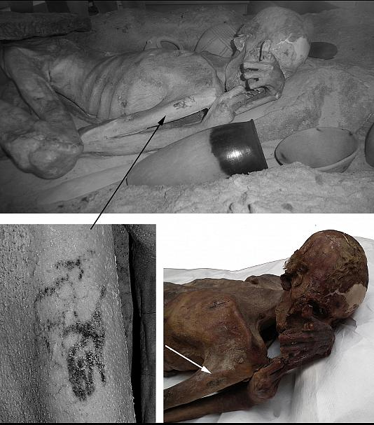 უძველესი ტატუ  5000  წლის მუმიაზე აღმოაჩინეს