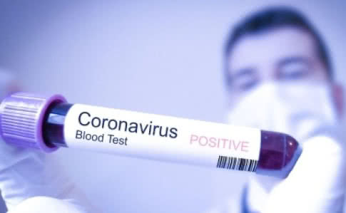 ინფექციური საავადმყოფოს ბოქსირებულ განყოფილებაში მოთავსებულ8 ადამიანს COVID 19 არ დაუდგინდა