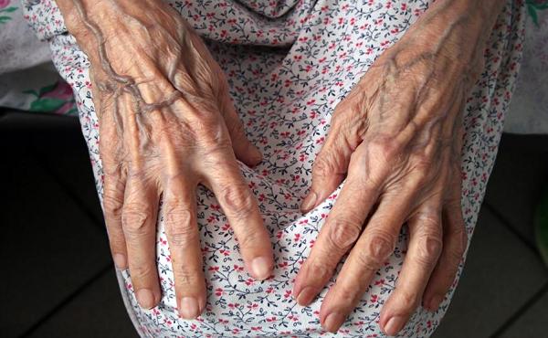ნიდერლანდებში კორონავირუსისგან 107 წლის ქალი გამოჯანმრთელდა