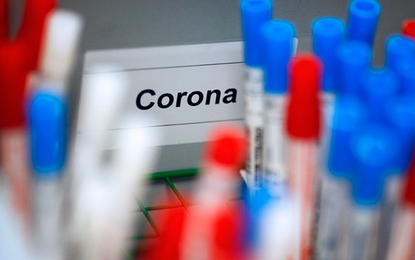საქართველოში კორონავირუსით ინფიცირებულთა რაოდენობა 134-მდე გაიზარდა