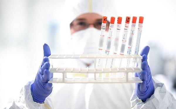 საქართველოში კორონავირუსით ინფიცირებულთა რიცხვი 13-ით გაიზარდა