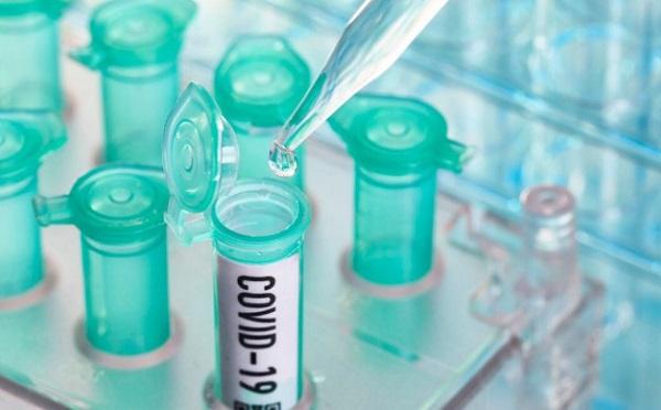 ქუთაისის საავადმყოფოში COVID-19-ის დიაგნოზით ახალგაზრდა მამაკაცი შეიყვანეს