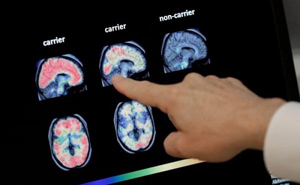 აშშ-ში ალცჰეიმერის დაავადების პრეპარატი დამტკიცდა